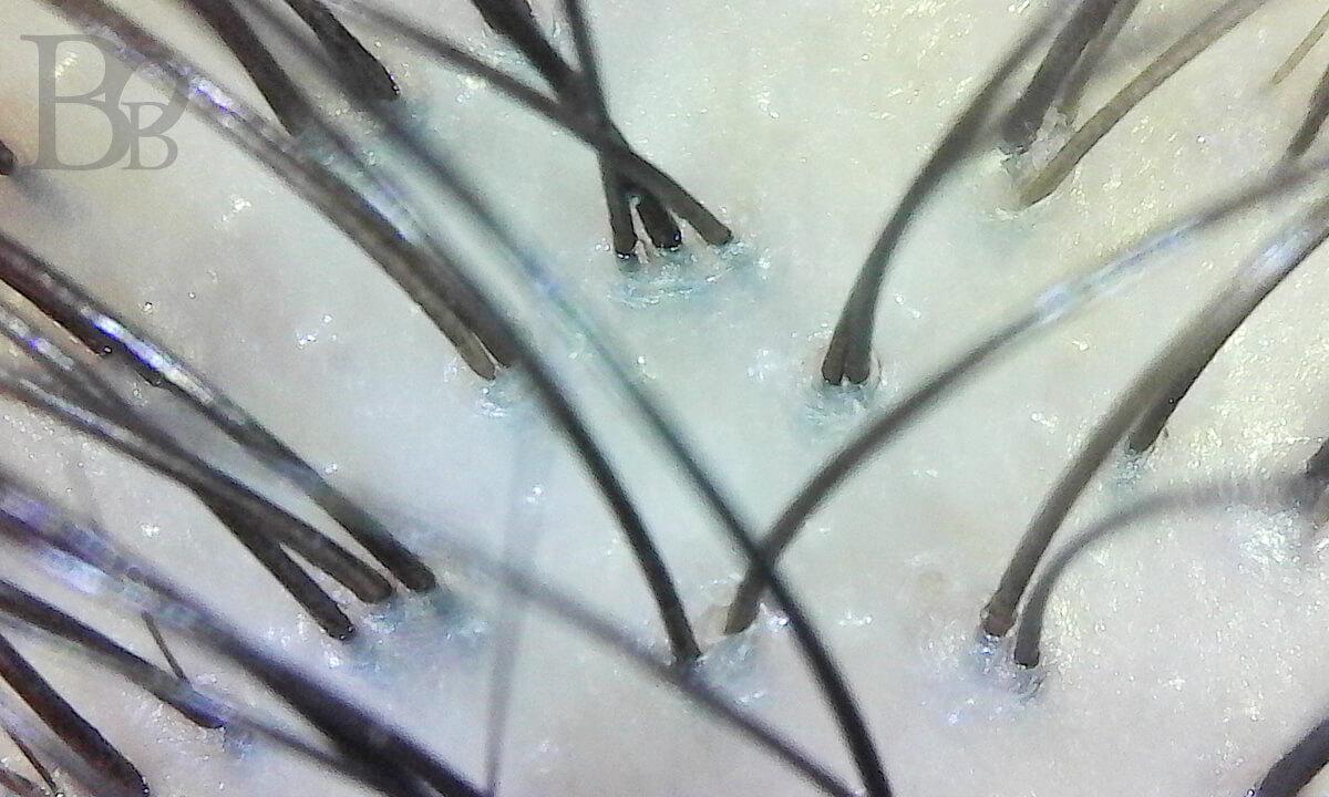 オイルクレンジングした後の頭皮の毛穴。クレンジング前に比べて毛穴に詰まった皮脂が顕著に少なくなっている。マイクロスコープで撮影