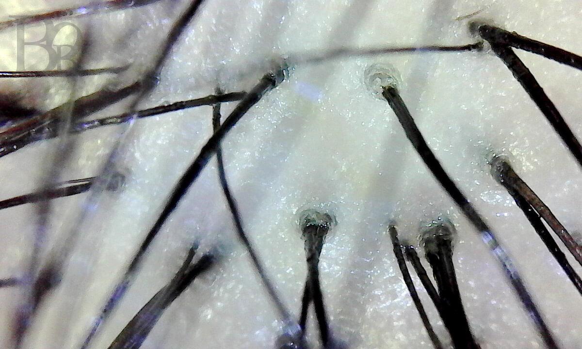 ミドル脂臭の対策には頭皮のケアが一番の近道