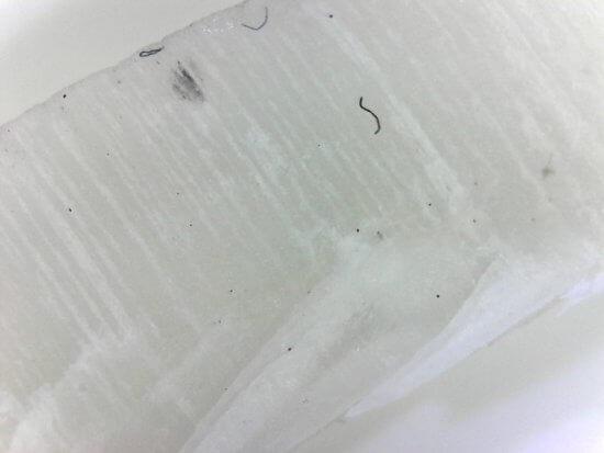 足の爪の垢や汚れをマイクロスコープで撮影したもの。