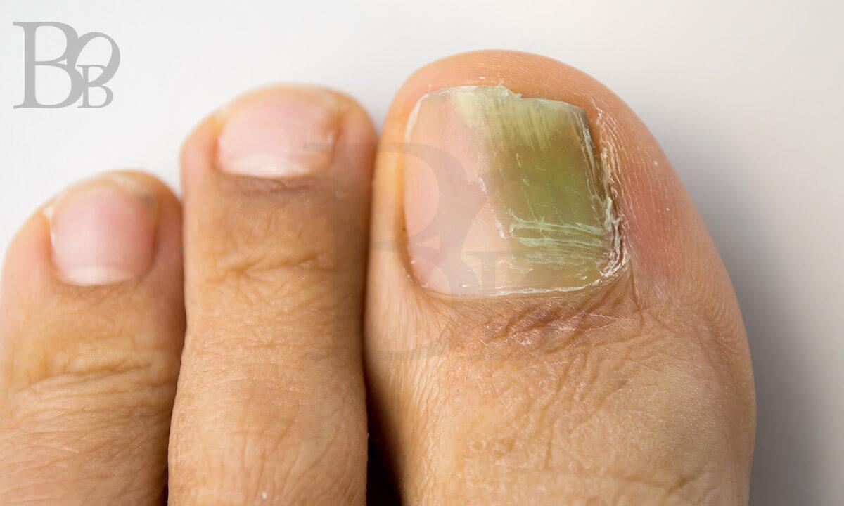 足の爪・グリーンネイル。親指の爪が緑色になってしまっている。